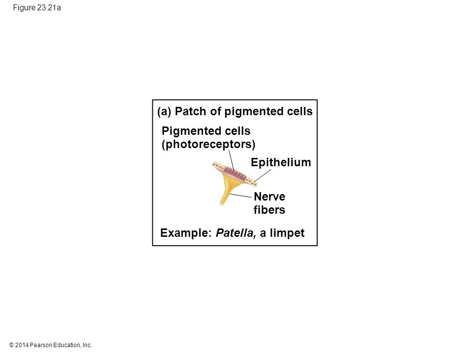 (a) Patch of pigmented cells