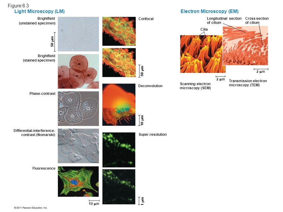 Electron Microscopy (EM)