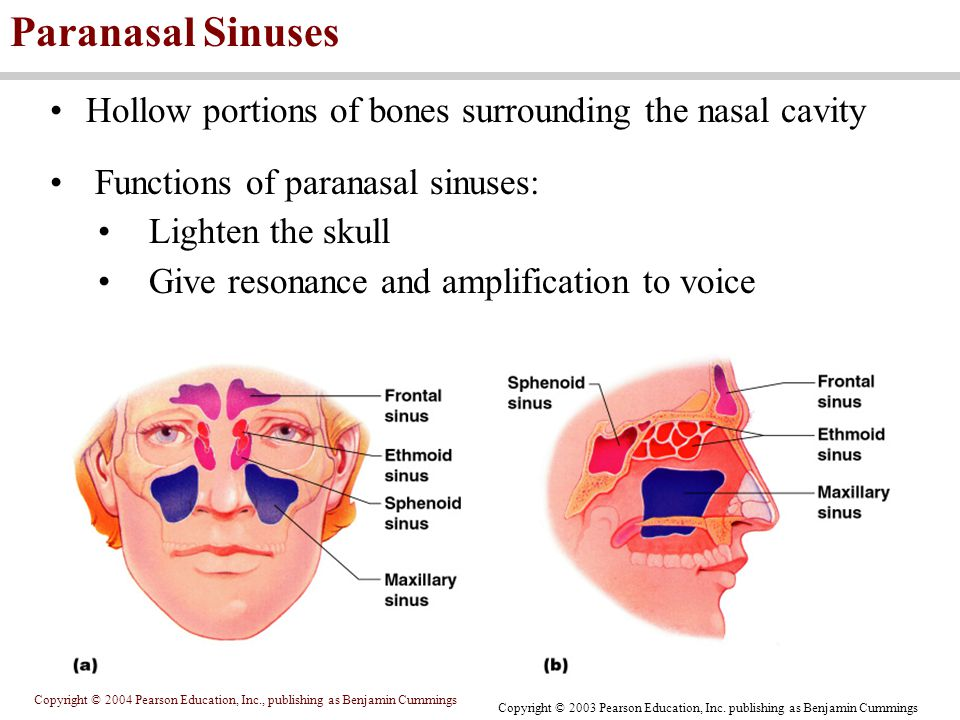 Paranasal Sinuses Hollow portions of bones surrounding the nasal cavity. Functions of paranasal sinuses: