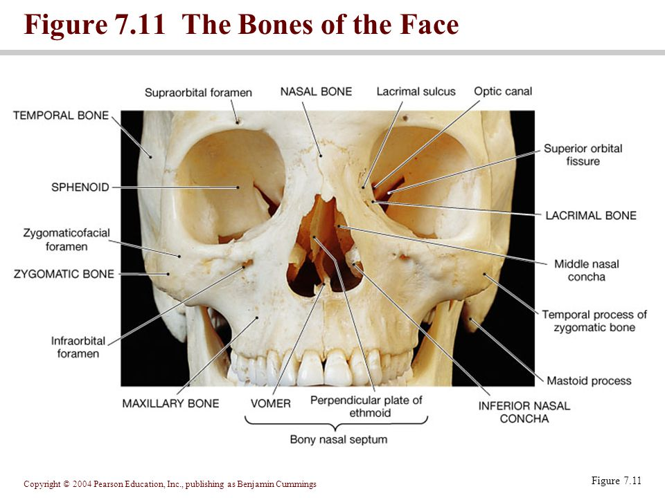 Figure 7.11 The Bones of the Face