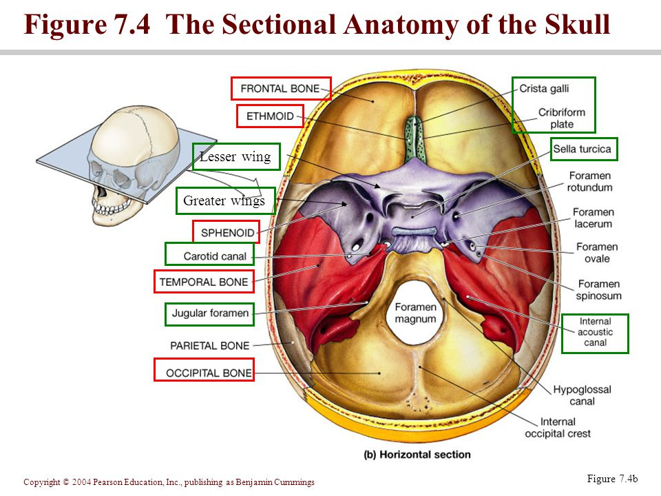 Figure 7.4 The Sectional Anatomy of the Skull