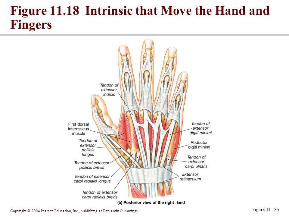 Figure 11.18 Intrinsic that Move the Hand and Fingers