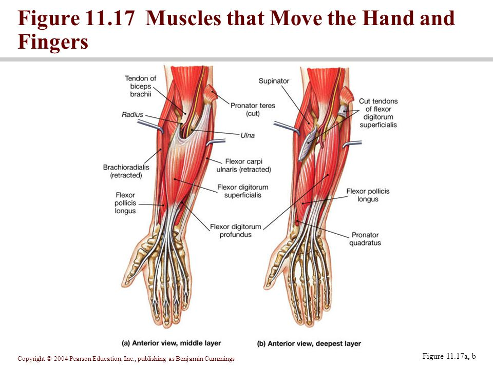 Figure 11.17 Muscles that Move the Hand and Fingers