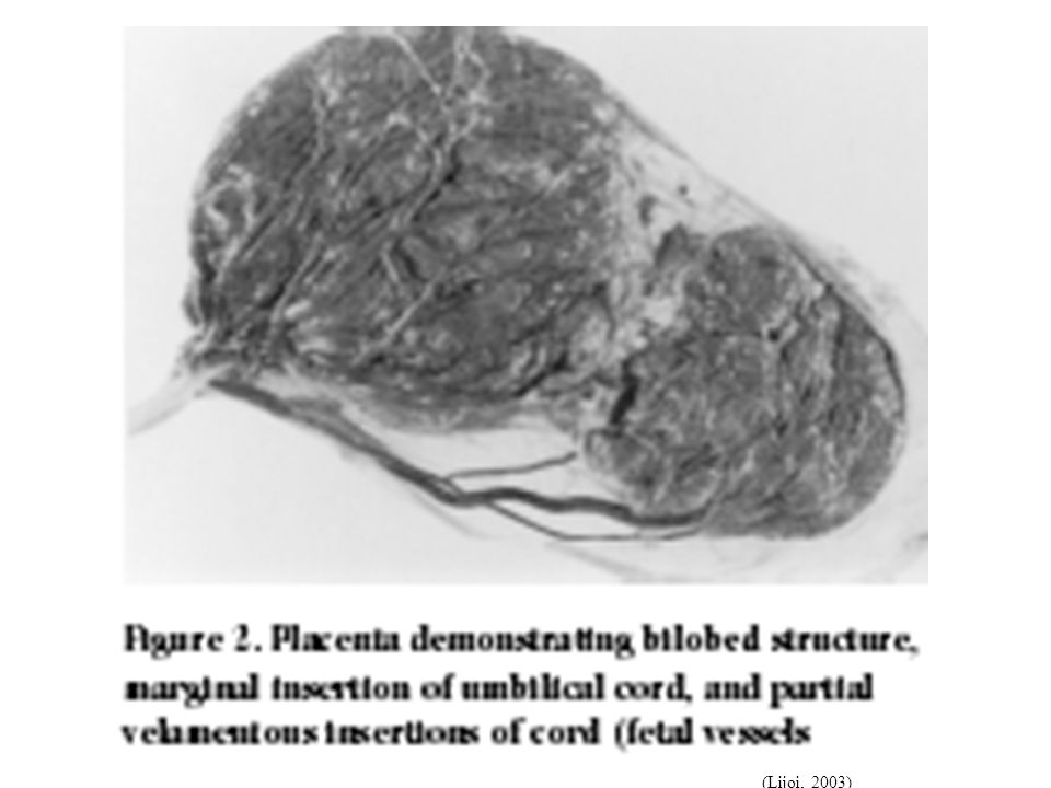 This photo shows 1)a bi-lobed placenta, 2)marginal insertion of cord, and 3)velamentous vessels. Velamentous insertions occur often when the placenta is bi-lobed, or has a succenturiate lobe (satellite lobe of main placenta).