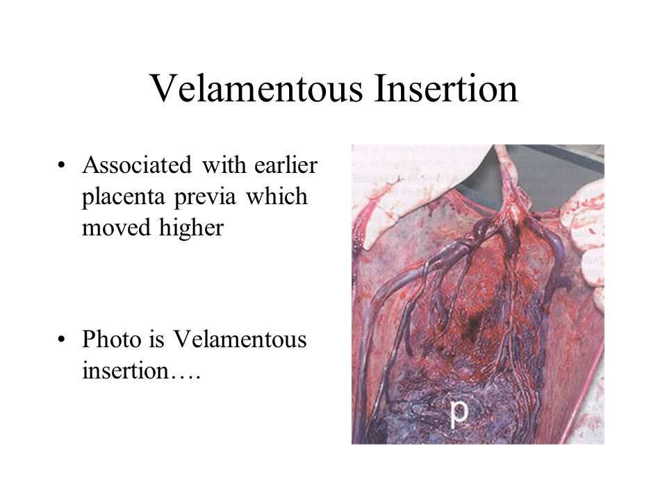 Velamentous Insertion