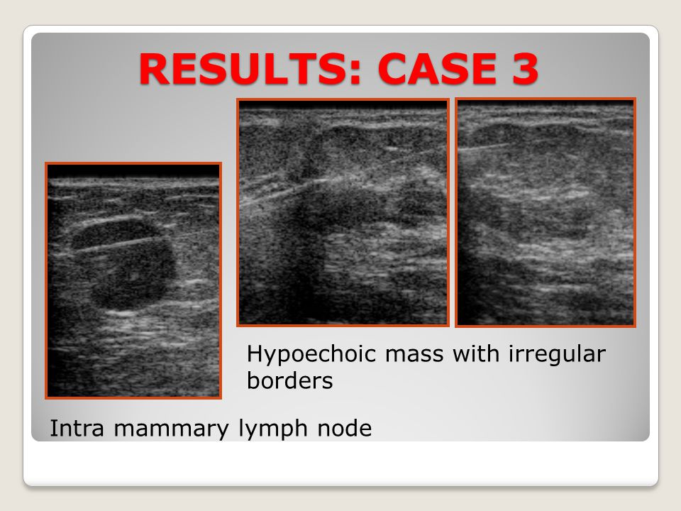 RESULTS: CASE 3 Hypoechoic mass with irregular borders