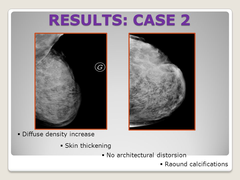 RESULTS: CASE 2 Diffuse density increase Skin thickening