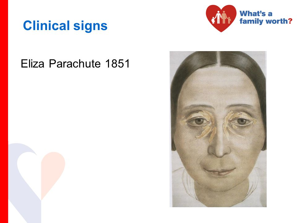 Clinical signs Eliza Parachute 1851