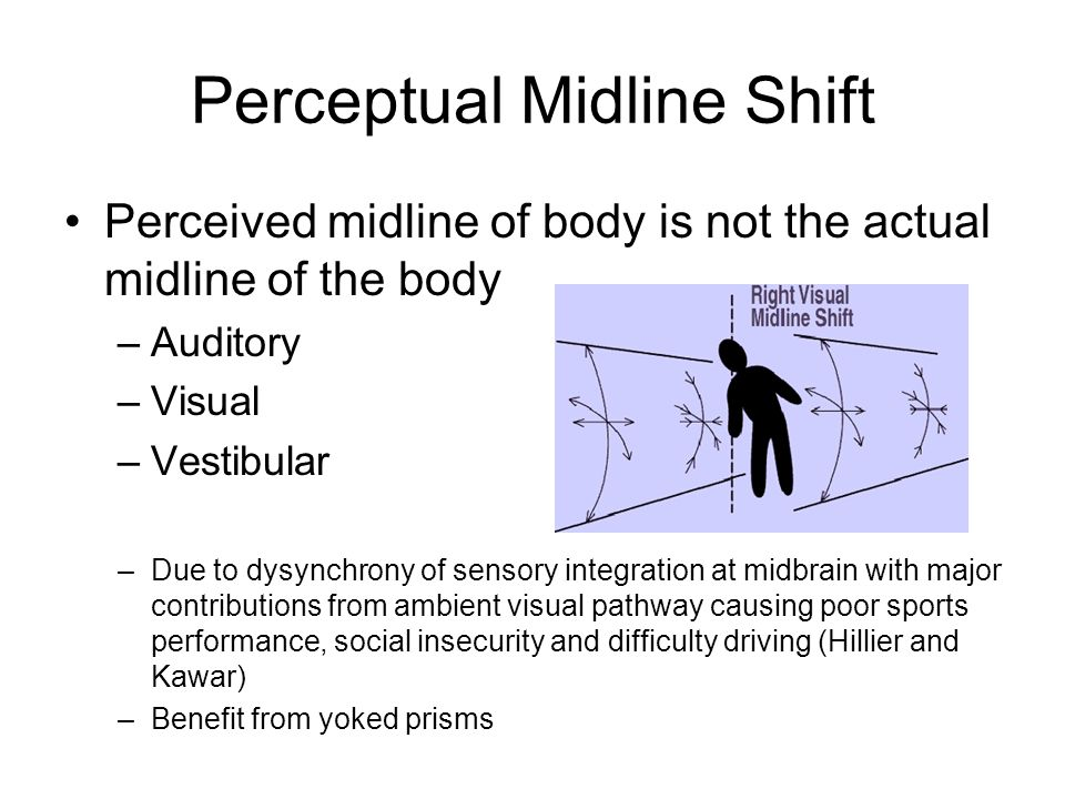 Perceptual Midline Shift