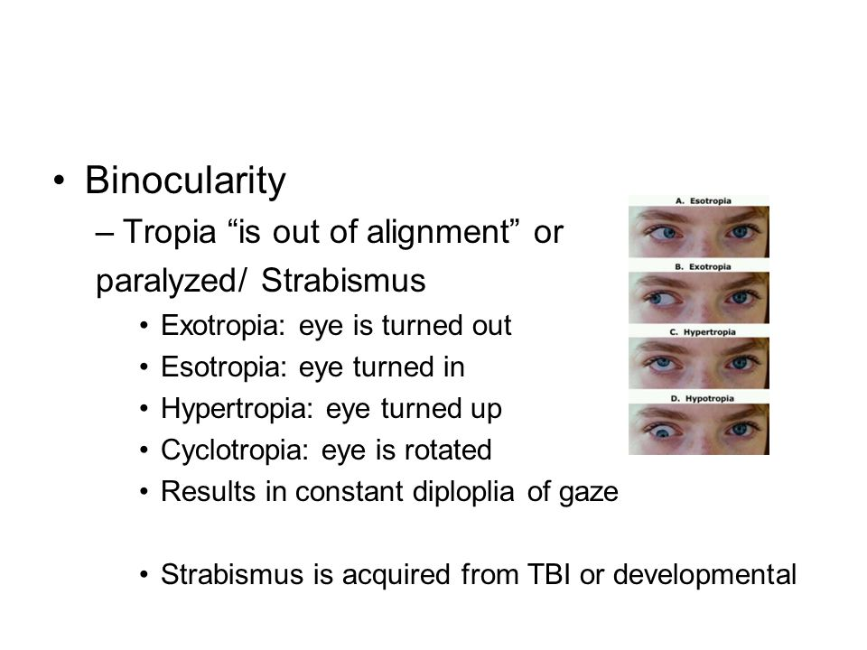 Binocularity Tropia is out of alignment or paralyzed/ Strabismus