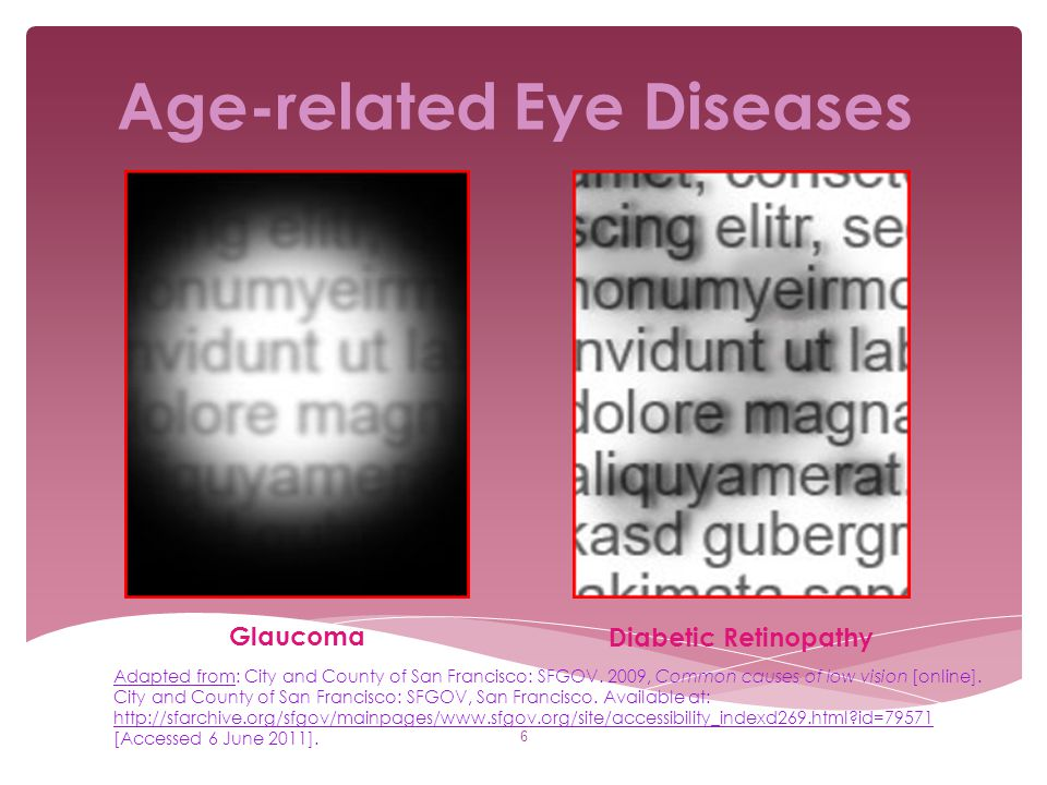 Age-related Eye Diseases