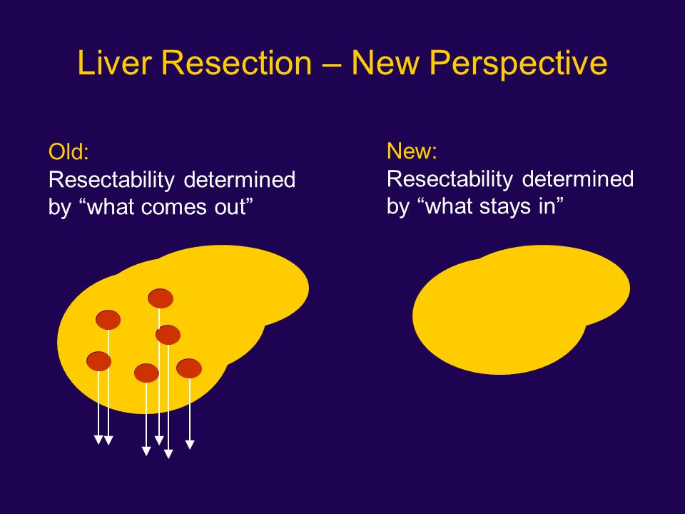 Liver Resection – New Perspective