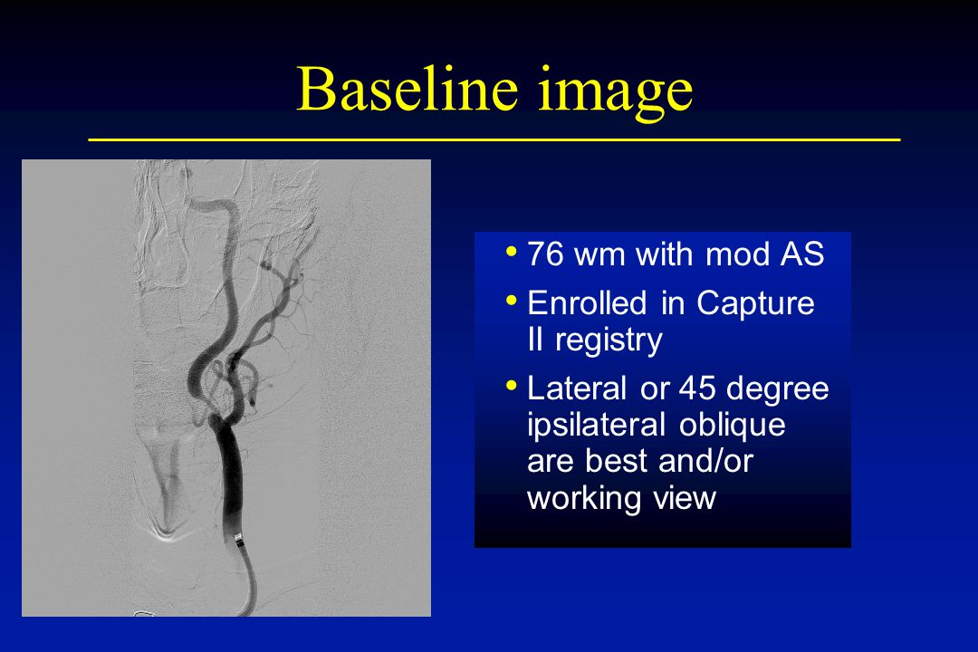 Baseline image 76 wm with mod AS Enrolled in Capture II registry
