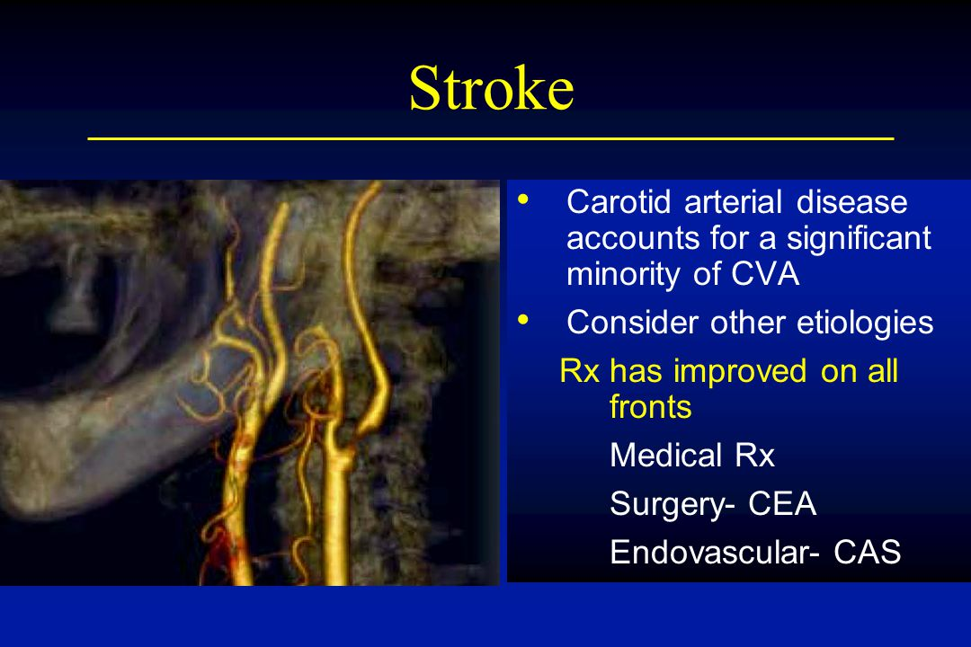 Stroke Carotid arterial disease accounts for a significant minority of CVA. Consider other etiologies.