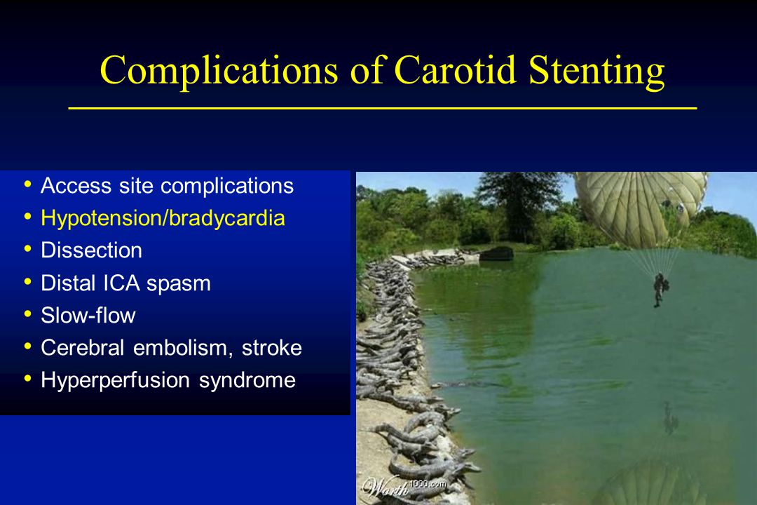 Complications of Carotid Stenting