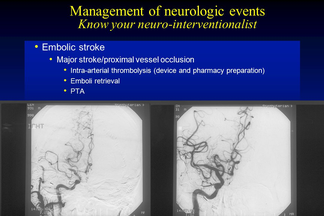 Management of neurologic events Know your neuro-interventionalist