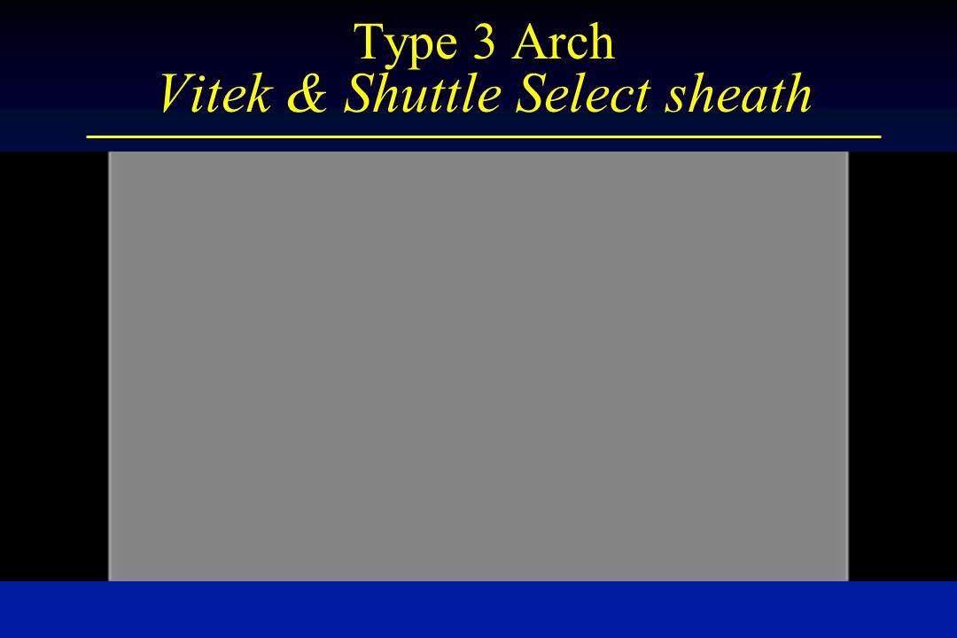 Type 3 Arch Vitek & Shuttle Select sheath