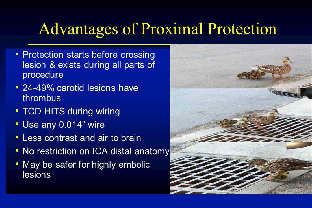 Advantages of Proximal Protection