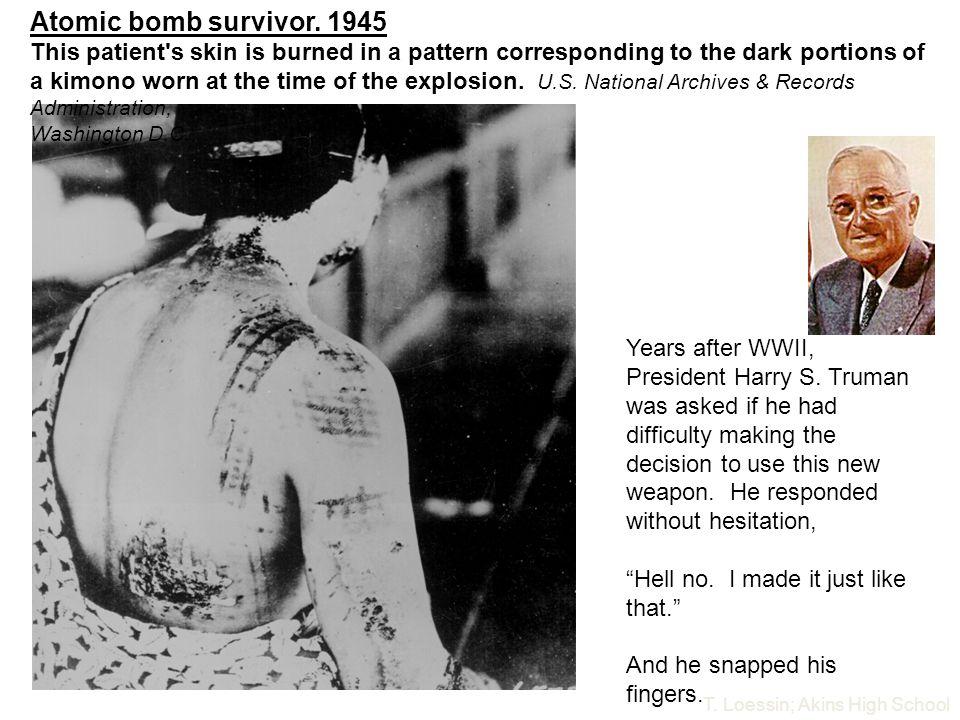 Atomic bomb survivor. 1945