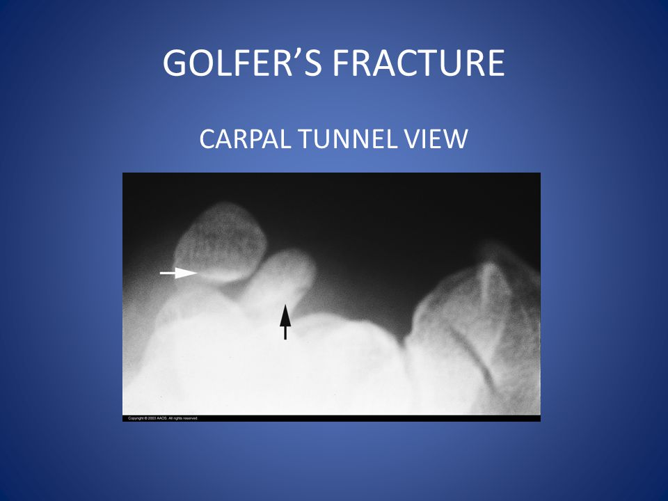 GOLFER'S FRACTURE CARPAL TUNNEL VIEW