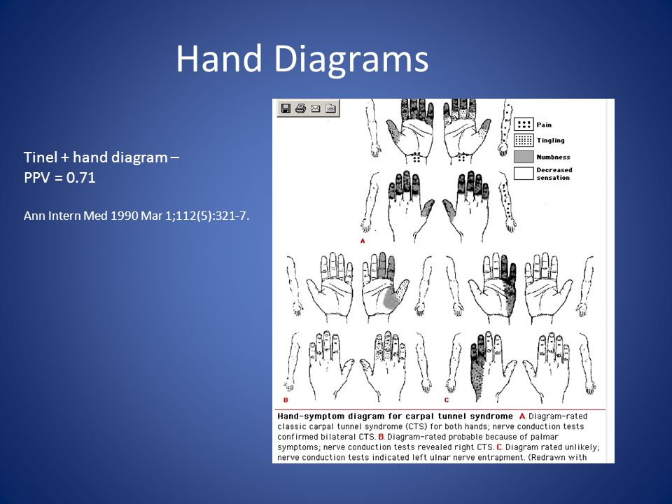 Hand Diagrams Tinel + hand diagram – PPV = 0.71