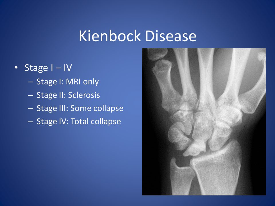 Kienbock Disease Stage I – IV Stage I: MRI only Stage II: Sclerosis