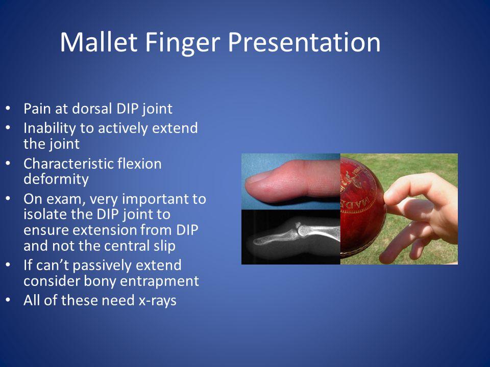 Mallet Finger Presentation