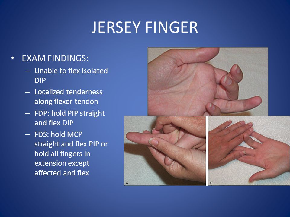 JERSEY FINGER EXAM FINDINGS: Unable to flex isolated DIP