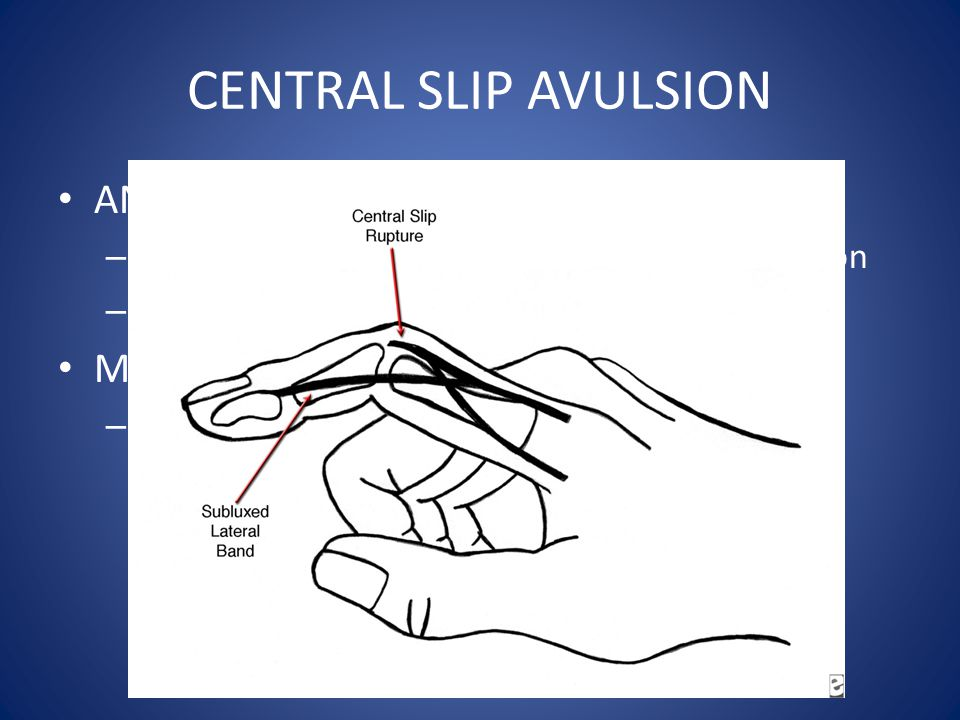 CENTRAL SLIP AVULSION ANATOMY MECHANISM: