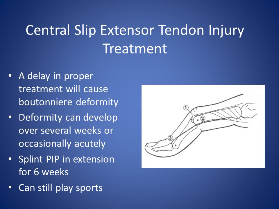 Central Slip Extensor Tendon Injury Treatment