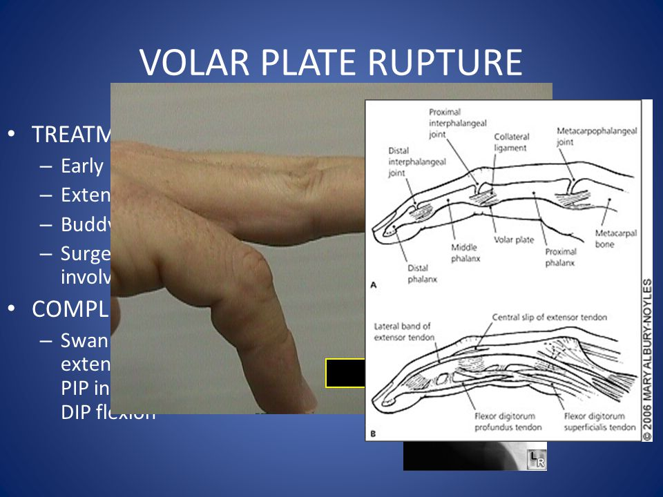 VOLAR PLATE RUPTURE TREATMENT: COMPLICATIONS: Early mobilization