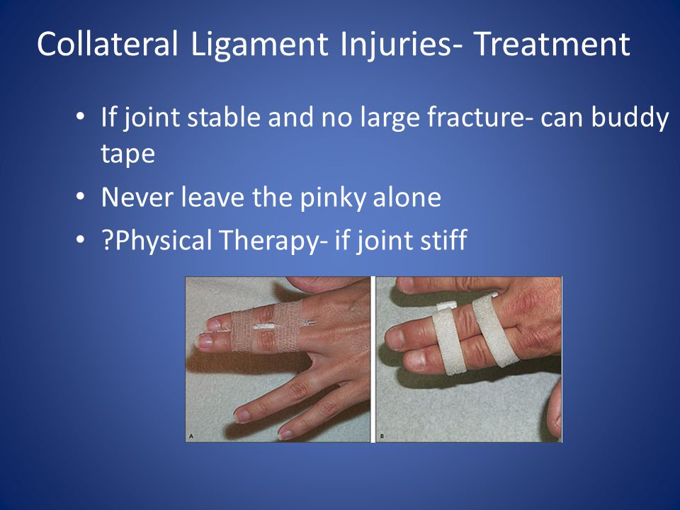Collateral Ligament Injuries- Treatment