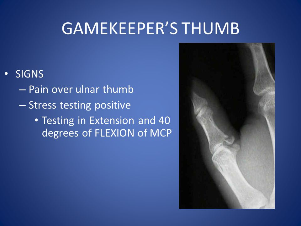 GAMEKEEPER'S THUMB SIGNS Pain over ulnar thumb Stress testing positive