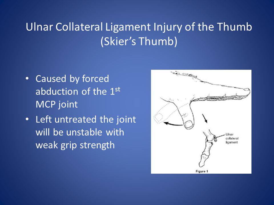 Ulnar Collateral Ligament Injury of the Thumb (Skier's Thumb)