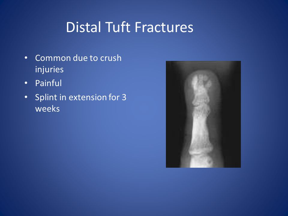 Distal Tuft Fractures Common due to crush injuries Painful