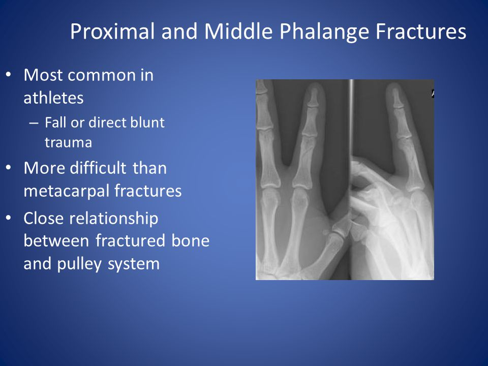 Proximal and Middle Phalange Fractures