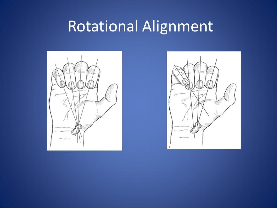 Rotational Alignment Figure 4.