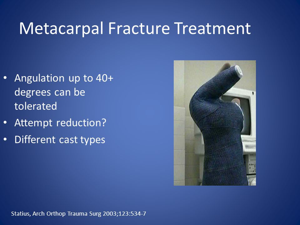 Metacarpal Fracture Treatment