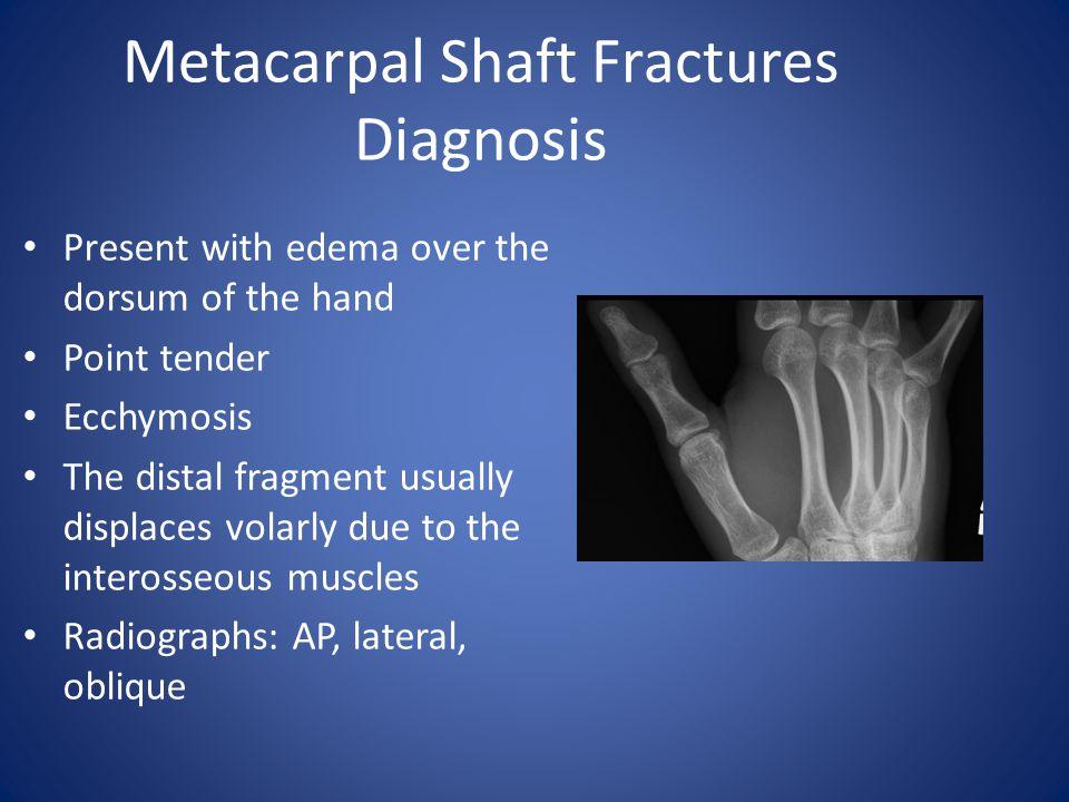 Metacarpal Shaft Fractures Diagnosis