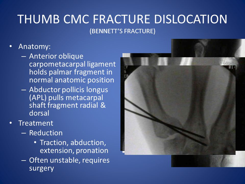 THUMB CMC FRACTURE DISLOCATION (BENNETT'S FRACTURE)