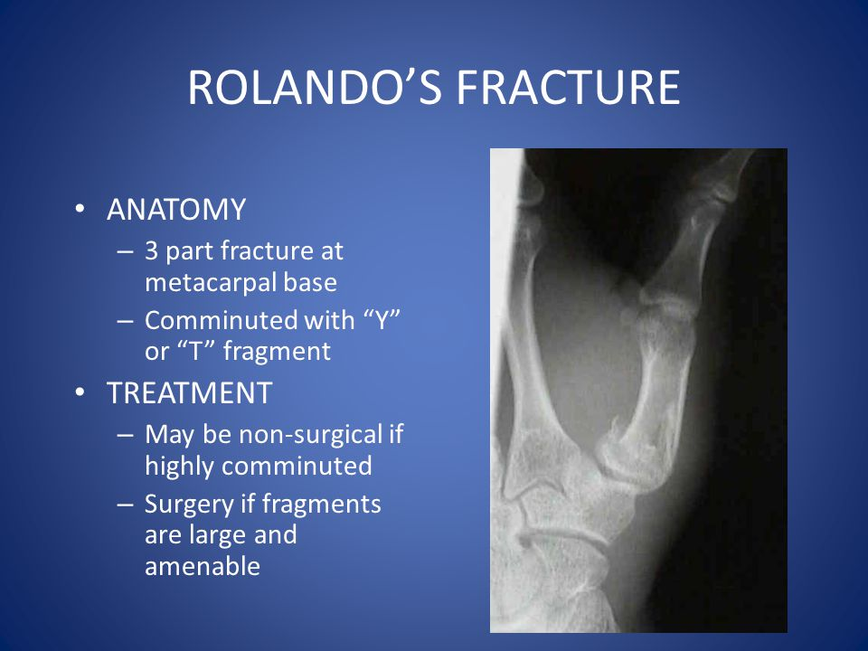 ROLANDO'S FRACTURE ANATOMY TREATMENT