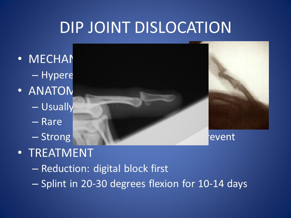DIP JOINT DISLOCATION MECHANISM ANATOMY TREATMENT
