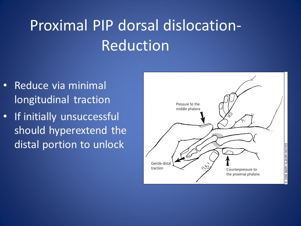 Proximal PIP dorsal dislocation- Reduction