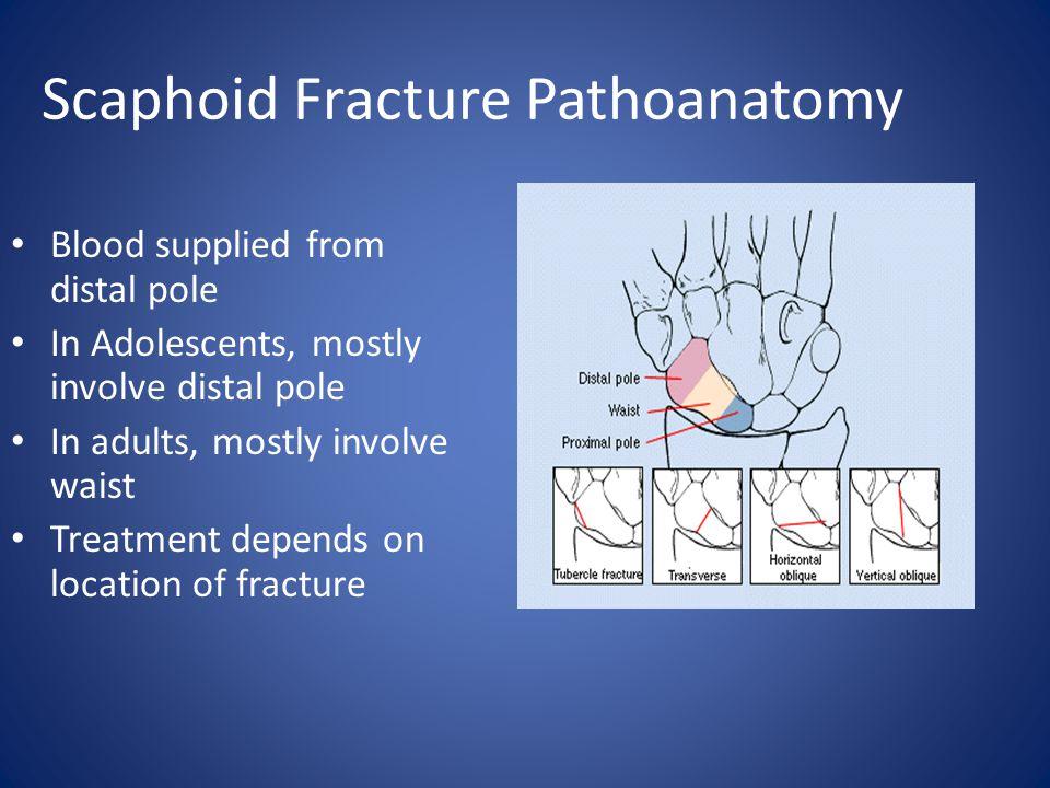 Scaphoid Fracture Pathoanatomy