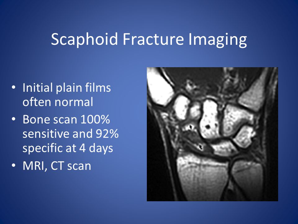 Scaphoid Fracture Imaging