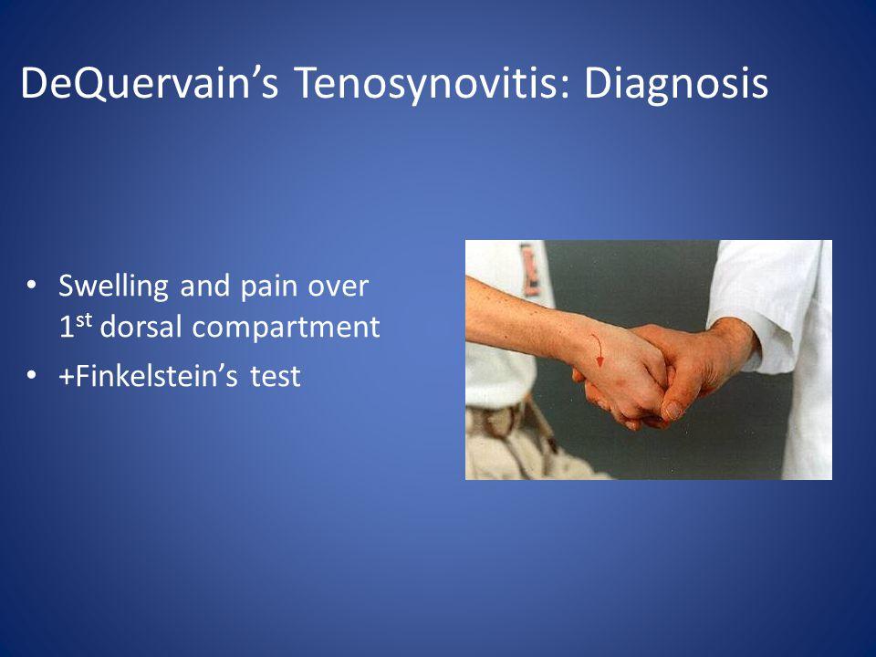 DeQuervain's Tenosynovitis: Diagnosis