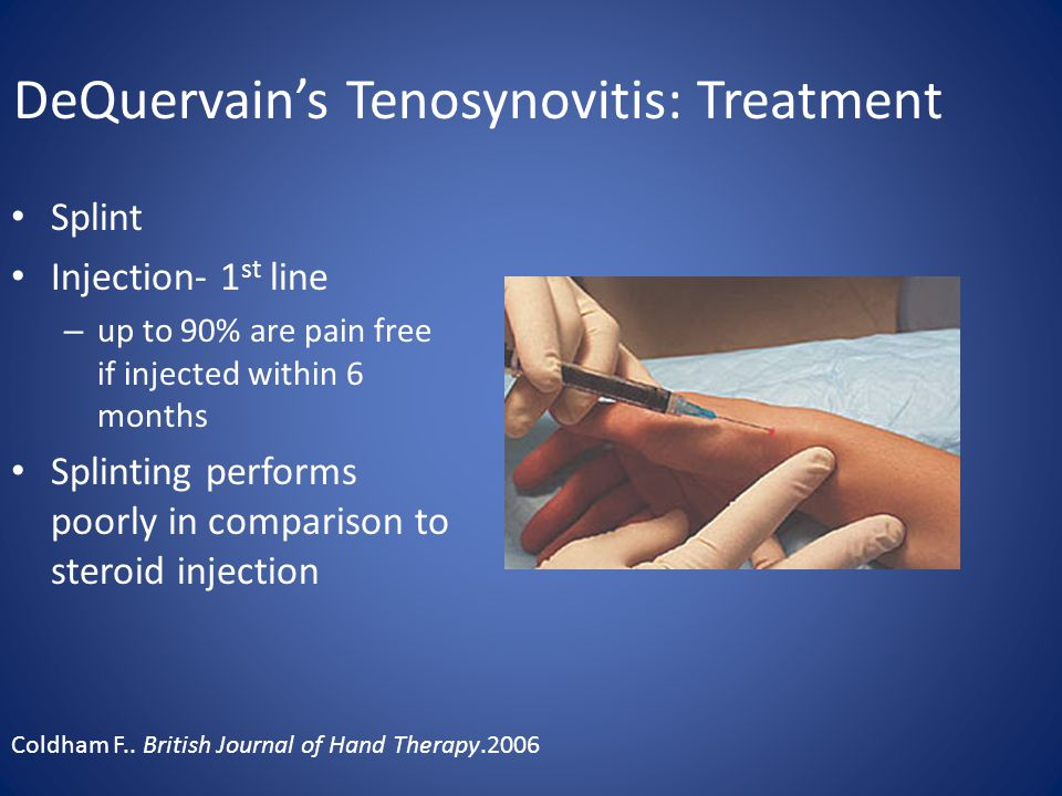 DeQuervain's Tenosynovitis: Treatment