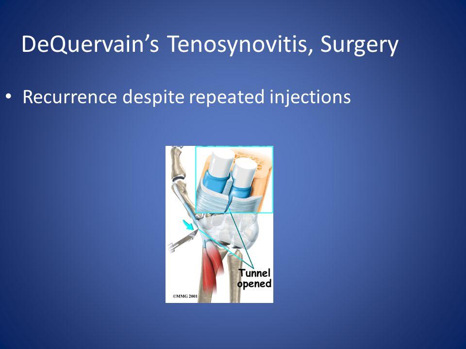 DeQuervain's Tenosynovitis, Surgery