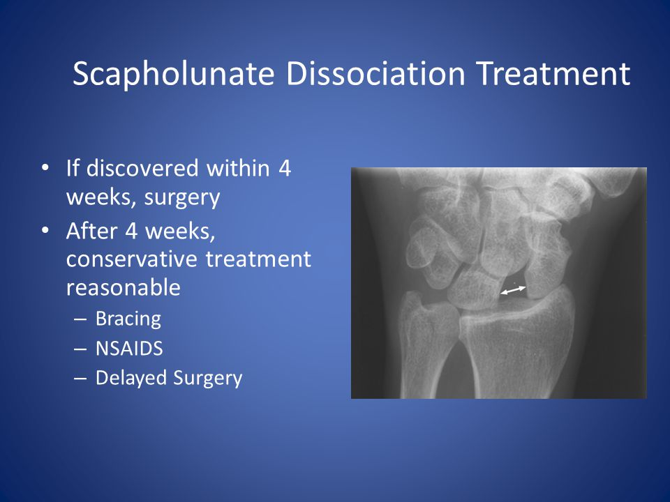 Scapholunate Dissociation Treatment