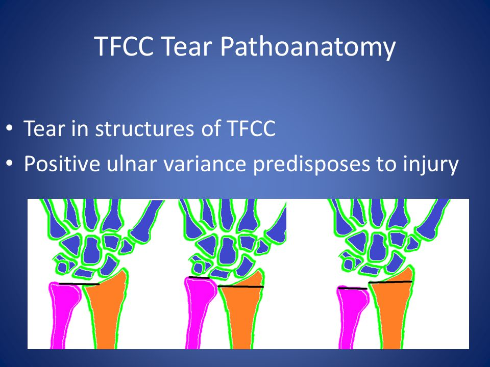 TFCC Tear Pathoanatomy